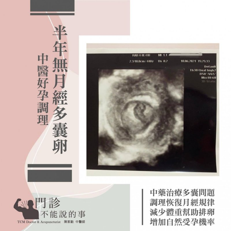 多囊半年沒有月經調經減重助好孕-封面圖