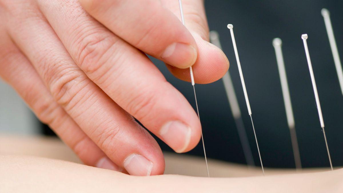 認識中醫什麼是針灸-封面圖